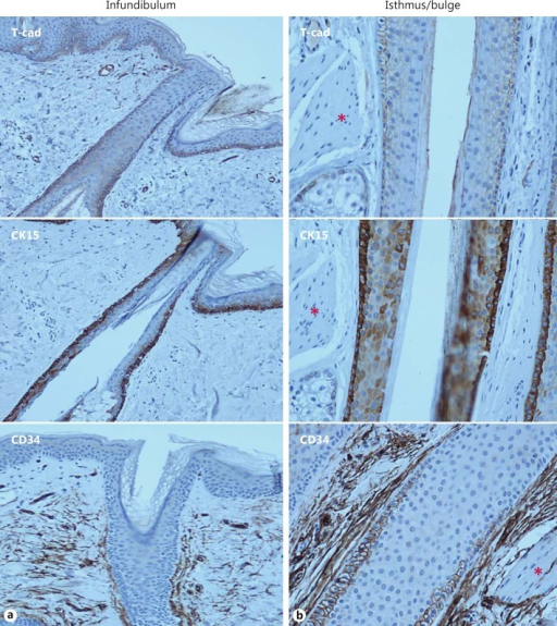 Expression of T-cadherin, CK15, and CD34 in the infundibulum and isthmus in serial sections of terminal hair follicles. a The ORS layer of the hair follicle infundibulum demonstrates positive membranous staining for T-cadherin and CK15, whereas no staining for CD34 is present. b Note that T-cadherin immunoreactivity prominently marks ORS cells within the lower isthmus near the arrector pili muscle (indicated by asterisks) attachment site of the hair follicle known as the bulge. T-cadherin and CK15 stem cell marker similarly localized within the bulge and suprabulbar region. T-cadherin and CD34 stem cell marker similarly localized at the suprabulbar level.