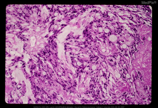 Myxopapillary Ependymomas are slowly growing gliomas with preferential manifestation in young adults and are almost exclusively located in the conus medullaris, cauda equina, filum terminale region of the spinal cord. They are histologically characterized by tumor cells arranged in a papillary manner around vascularized mucoid stromal cores.