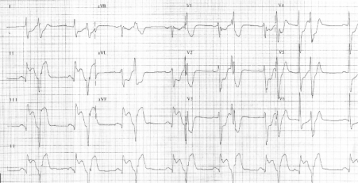 The patient's electrocardiogram on presentation.