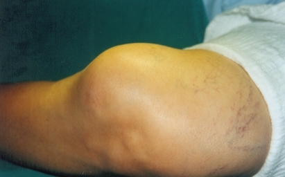 External aspect of the cyst