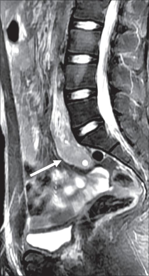 MRI of the lower abdomen and pelvis (sagittal fat-suppr | Open-i
