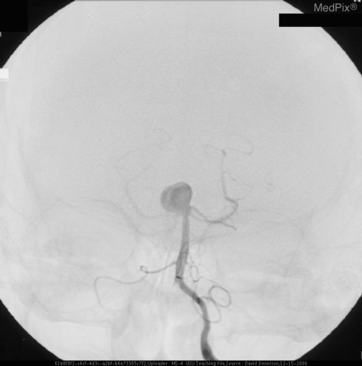 AP orientation of basilar artery-tip aneurysm using contrast injected into the left vertebral artery.