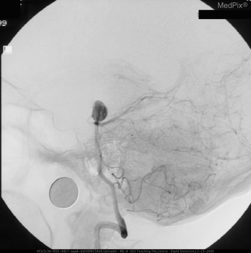Lateral orientation of basilar-tip aneurysm.
