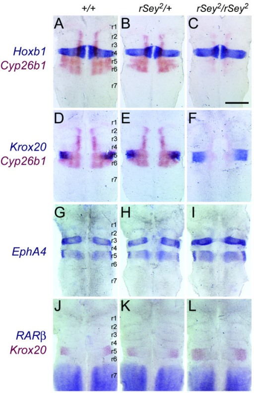 The rhombomere 5 region is broadened in the rSey2/rSey2 hindbrain. (A-F) The expression sites of Hoxb1 and Krox20 (blue) were compared with that of Cyp26b1 (red) in WT (A, D), rSey2/+ (B, E) and rSey2/rSey2 (C, F) hindbrains. (A-C) Hoxb1 expression (as a marker of r4) is unchanged in the rSey2/rSey2 hindbrain (C). (D-F) Krox20 expression (as a marker of r5; cannot detect in r3 at E11.5) overlaps with Cyp26b1 expression in the dorsolateral domain of the WT and rSey2/+ hindbrain (D and E). The r5 region is slightly broadened in the rSey2/rSey2 hindbrain along the anterior-posterior axis (F). (G-I) EphA4 expressed in both r3 and r5 of the E11.5 hindbrain. EphA4 expression domains (blue) are broadened only within the r5 region of the rSey2/rSey2 hindbrain (I) as compared to the WT (G). (J-L) The expression site of RARβ (blue) was compared with that of Krox20 (red) in WT (J), rSey2/+ (K) and rSey2/rSey2 (L) hindbrains. Krox20 expression is posteriorly expanded in the rSey2/rSey2 hindbrain (L), although the anterior border of RARβ expression (anterior edge of r7 in L) is not altered. Scale bar: 500 μm.
