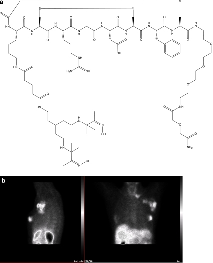 a Structural formula of NC100692. b Patient with uptake of 99mTc-NC100692 in cancer in the left breast, axillary and subclavicular lymf nodes (This image was kindly provided by Dr. Rimma Axelsson, Division of Radiology, Karolinska Institutet, Stockholm, Sweden)