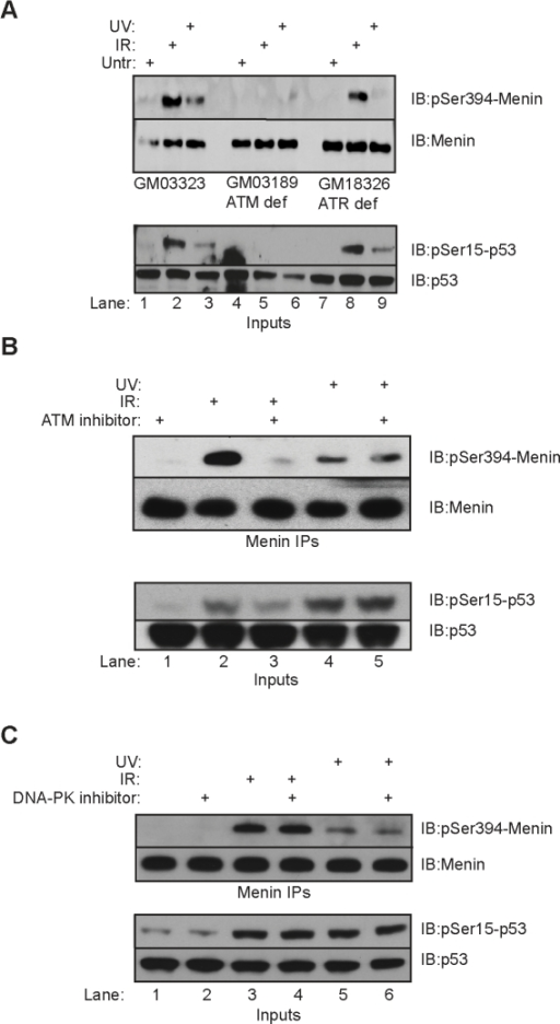 Menin phosphorylation is dependent upon ATM and ATR.(A) Menin IPs from control GM03323, ATM deficient GM03189 and ATR deficient GM18326 lymphoblastoid cells were performed 90 minutes after exposure to 1000 Rads γ-IR or 30 minutes after 25J/m2 UV. IPs were resolved and immunoblotted with phospho-Ser394 or total menin antibodies. Whole cell extracts from each cell type were immunoblotted with phospho-Ser15-p53 and total p53 (lower panel). (B) 293T cells were pretreated with 10 uM KU55933 for 2 hours prior to treatment with 1000 Rads γ-IR or 25J/m2 UV. Menin IPs were performed, resolved and immunoblotted for phospho-Ser394 or total menin. The same whole cell extracts were immunoblotted with phospho-Ser15-p53 and total p53 (lower panel). (C) 293T cells were pretreated with 10 uM DNA-PK inhibitor II for 2 hours prior to treatment with 1000 Rads γ-IR or 25J/m2 UV. Menin IPs were performed, resolved and immunoblotted for phospho-Ser394 or total menin. The same whole cell extracts were immunoblotted with phospho-Ser15-p53 and total p53 (lower panel).