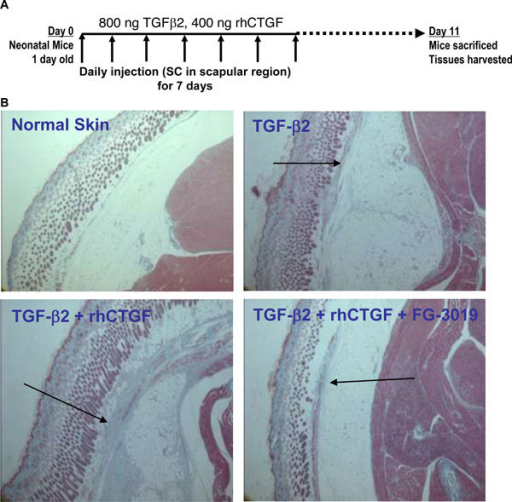 CTGF is essential for persistent fibrosis. One day old neonatal mice were injected SC daily for 7 days with 800 ng TGFβ2 alone or with 400 ng CTGF. FG-3019 was also administered to one group that received CTGF. The injections were then stopped for 4 days and the mice were sacrificed to examine the deposition of ECM components and cellular invasion. Panel A: the experimental design. Panel B: A cross section of the skin, SC space and underlying muscle from representative mice is shown. The arrows point out fibrotic response to the various treatments.
