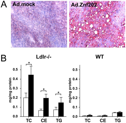 Hepatic Znf202 overexpression causes hepatosteatosis in Ldlr−/− mice only.Livers were isolated from Ldlr−/− and WT mice 5 days after injection with 2.109 pfu of Ad.Znf202 (filled bars) or Ad-mock (empty bars). Cryosections were prepared from Ldlr−/− liver samples and stained with Oil Red-O (A). Hepatic lipids were extracted from homogenized liver samples and cholesterol and TG concentrations were determined (B). Values are expressed as µg lipid per mg tissue protein and are means ± SD (n = 4). * indicates p<0.05.