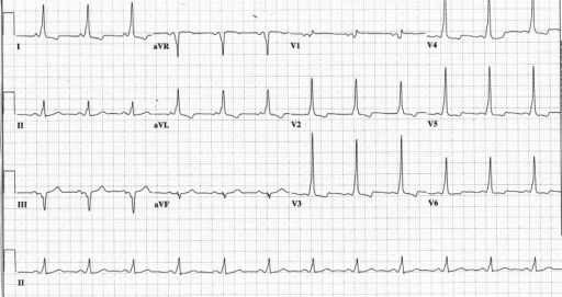 ECG showing short PR, delta waves and wide QRS duration ...