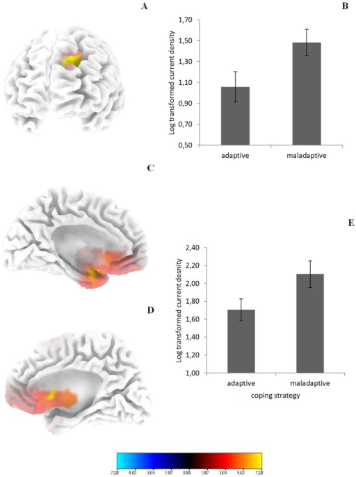 (A) Increased activity in the left dorsolateral prefrontal cortex (BA9) for tinnitus patients using a maladaptive coping style in comparison to tinnitus patients using an adaptive coping style for the frequency band Alpha1. (B) Region of interest analysis shows increased activity in the left dorsolateral prefrontal cortex (BA9) for tinnitus patients using a maladaptive coping style in comparison to tinnitus patients using an adaptive coping style for Alpha1. (C & D) Increased activity in the subgenual anterior cingulate cortex (BA25) for tinnitus patients using a maladaptive coping style in comparison to tinnitus patients using an adaptive coping style for the frequency band Alpha2. (E) Region of interest analysis shows increased activity in the subgenual anterior cingulate cortex (BA25) for tinnitus patients using a maladaptive coping style in comparison to tinnitus patients using an adaptive coping style for Alpha2.
