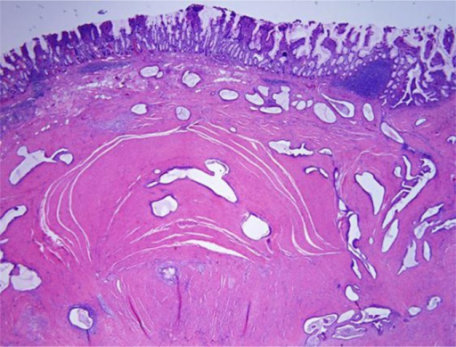 Histology of the surgical specimen showed focal submucosal hemorrhage and serosal scarring.