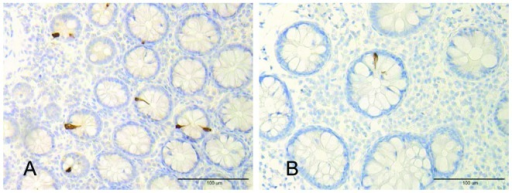 PYY-immunoreactive cells in the colon of (A) a healthy volunteer and (B) a patient withIBS.