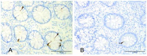 Photomicrograph of PYY-immunoreactive cells in the colon of (A) a healthy volunteer and(B) a patient with ulcerative colitis.