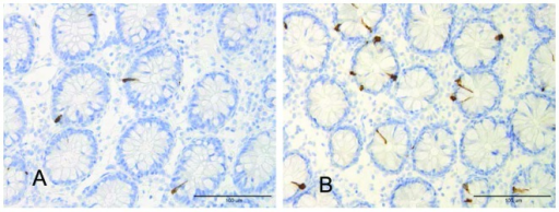 PYY-immunoreactive cells in the colon of (A) a healthy volunteer and (B) a patient withlymphocytic colitis.