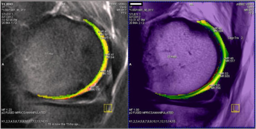 Magnetic resonance imaging and biochemical imaging of normal articularcartilage. Sagittal intermediate-weighted fast spin-echo -repetition time/echo time: 3100/35 - with superimposed biochemicalimaging colorized maps (left = T1 rho andright = T2) shows normal articular cartilage. Notethree-layered cartilage appearances.