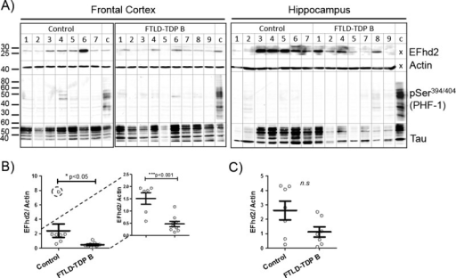 EFhd2 protein levels in the frontal cortex are reduced in patients with dementia without tauopathy. (A) Western blots showing EFhd2 protein levels in human frontal cortex (left) and hippocampal (right) tissue RIPA extracts from nondemented controls and individuals with frontotemporal lobar degeneration FTLD-TDP Type B. A sample from AD frontal cortex was run as a calibrator and phospho-tau–positive control on each gel. No calibrator sample was run for EFhd2 and actin detection in hippocampal samples because all samples were run on the same SDS-PAGE. Beta-actin was used as a loading control. (B) Quantification of EFhd2 protein bands by densitometry in frontal cortex samples. * p < 0.05 with all data points (left), *** p < 0.001 without encircled outlier (right), compared with control by t test. (C) Quantification of EFhd2 protein bands in samples from human hippocampus from nondemented controls and individuals with FTLD-TDP Type B.