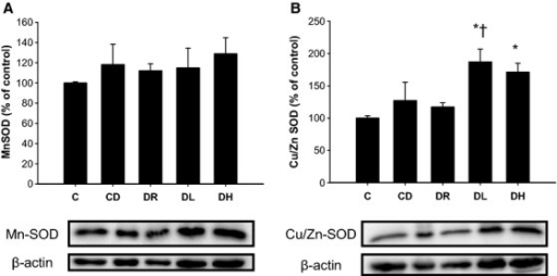 Effect of diabetic stress and training on left ventricle MnSOD (A) and Cu/Zn SOD (B) protein content. No change in MnSOD was evident across experimental groups while both low‐ and high‐intensity exercise aerobic training led to elevations in Cu/Zn SOD when compared to control rats. Low‐intensity aerobic exercise also demonstrated significantly more Cu/Zn SOD compared to sedentary diabetic rats *different than C; †different than CD, P < 0.05, based on a one‐way ANOVA. Data presented as a mean ± SE.