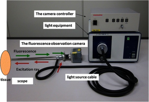 The autofluorescence observation system. A small CCD camera is attached to the endoscopic color fluorescence system PDS-2000, to enable white light and autofluorescence to be observed via a filter. The color fluorescence camera is equipped with a thoracoscope using the Olympus endoscopic system attachment.