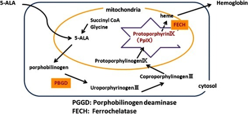 The metabolic pathway of 5ALA. Exogenous 5ALA is ingested and promptly metabolized to heme in normal cells. In contrast, the fluorescent substance protoporphyrin IX accumulates selectively in cancer cells, emitting red to pink fluorescence of about 630 nm, because cancer cells have high porphobilinogen deaminase activity and low ferrochelatase activity.