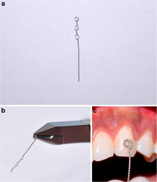 Stainless steel ligature wire. (a) A 0.010-in. ligature wire with three eyelets. (b) Ligature wire with spiral at one end and eyelets at the other end. (c) Illustrating close adaptation of spiral to tooth surface.