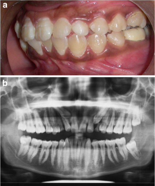 Intraoral photograph and radiograph. (a) Pretreatment intraoral photograph depicting retained deciduous canine. (b) Panoramic radiograph revealing impacted canine.