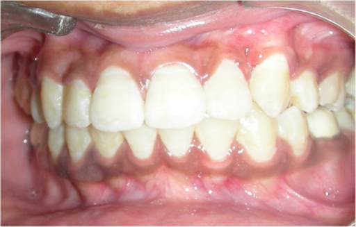 One-year follow-up of canine showing adequate amount of attached gingiva.