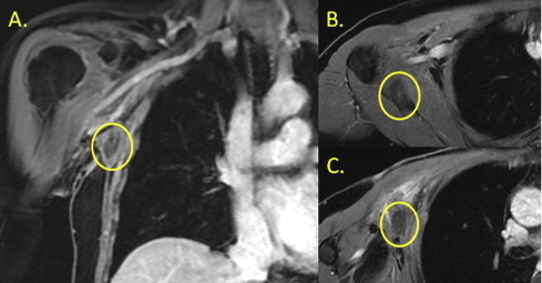 (A) Coronal MRA showing axillary recurrence of a 4.5 cm mass abutting the chest wall and axillary vein with possible involvement; (B) and (C) demonstrate the tumor in horizontal sections.