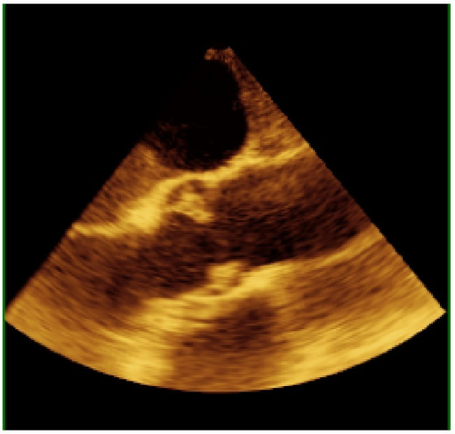 2D midesophageal aortic valve long axis with notable large vegetation.