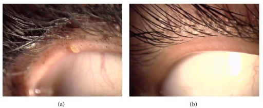 Plugging in the upper eyelid, with improvement after 4 weeks of intervention. (a) Week 0, with mascara and glue adhering to the eyelashes. (b) Week 4, after using artificial tears and Eye Shampoo.