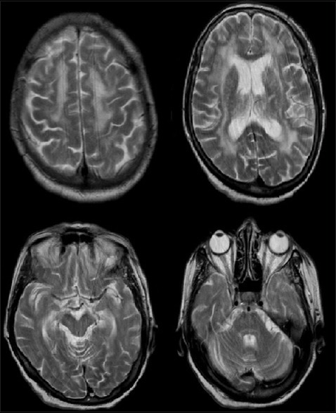 T2-weighted magnetic resonance imaging of the patient was found to be normal