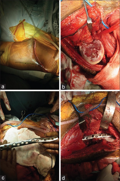 Intraoperative photographs showing (a) Skin incision (b) deformed femoral head (c) 14 hole DCP (d) iliofemoral arthrodesis