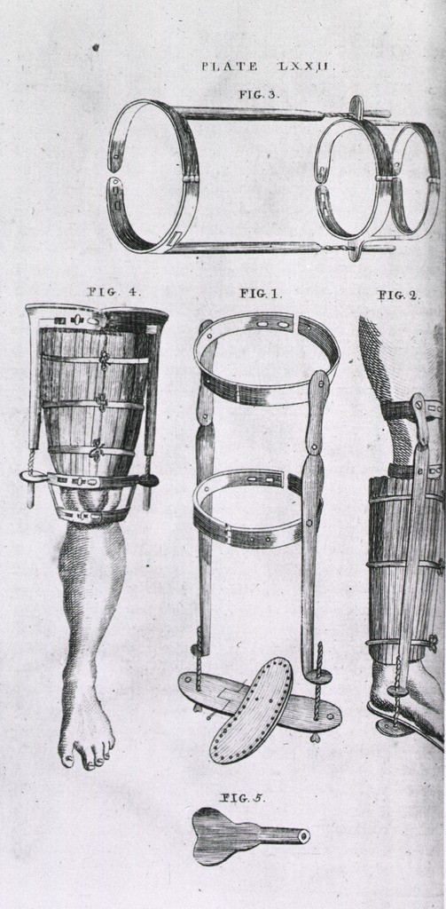 <p>Detail of braces for both upper and lower sections of the leg.</p>