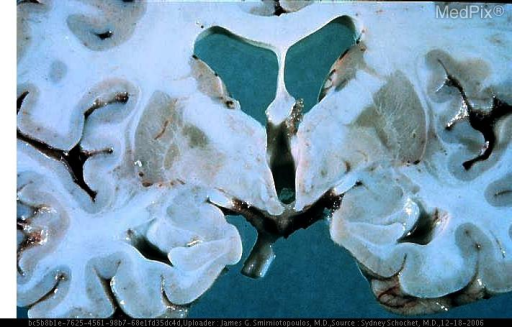 Gross coronal brain section, at the level of the mamillary bodies.  This photograph shows abnormal pallor in the medial globus pallidus of the lenticular nuclei, bilaterally.