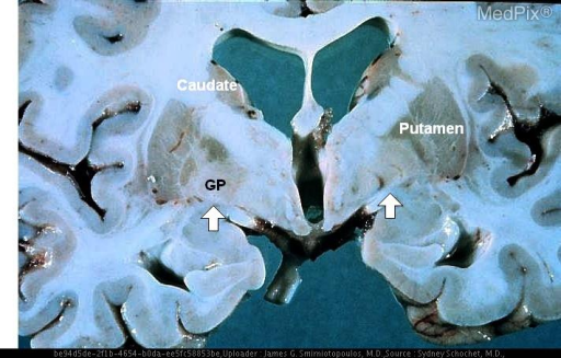 Abnormal signal hyperintensity in the medial globus pallidus (arrows) of the lenticular nuclei, bilaterally.