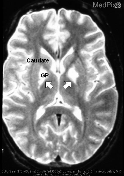 Abnormal signal hyperintensity in the medial globus pallidus (GP) (arrows) of the lenticular nuclei, bilaterally.