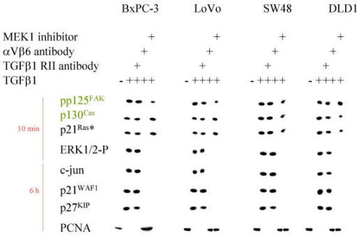 Cell cycle genes in response to TGFβ1. Western Blot analysis of BxPC-3, LOVO, SW48 and DLD1 cells as indicated after stimulation with TGFβ1 for the time indicated. Cytoskeletally anchored proteins are differentially marked. In part the cells were preincubated with αV- and β6-antibodies (1:100 each for 30 min), with a TGFβ-RII antibody (15 μg/ml for 30 min), cytochalasin D, BAPTA AM and MEK1 inhibitor PD98059, respectively.