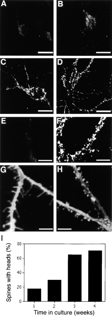 Time course of  heparan sulfate expression  and maturation of dendritic  spines in hippocampal neurons at 1–4 wk in vitro. Hippocampal neurons were  stained with 10E4 anti–heparan sulfate mAb at 1 (A), 2  (B), 3 (C), and 4 (D) wk in  culture. Punctate pattern of  heparan sulfate immunoreactivity became detectable on  the surfaces of cell bodies  and dendrites at 3 wk in  vitro. (E and F) High-power  image of heparan sulfate immunoreactivity along dendrites at 1 and 4 wk in vitro,  correspondingly. (G and H)  Confocal images of proximal  dendrites in DiO-injected  hippocampal neurons at 1  (G) and 4 (H) wk in culture.  The dendritic protrusions at  1 wk in vitro are long, thin  filopodia without heads (G).  At 4 wk the majority of dendritic protrusions have mature mushroom shapes with  thin necks and large heads  (H). Bars, 20 μm in A–D and  3 μm in E–H. (I) Formation  of mature spines with thin  neck and a distinct head over  the course of 1–4 wk in culture. Percentage of spines with heads was counted in 1-, 2-, 3-,  and 4-wk-cultures. A more than twofold increase in number of  headed spines was seen between 2 and 3 wk in culture.