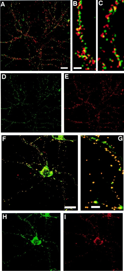 Postsynaptic localization of heparan sulfate in primary  cultures of rat hippocampal neurons. (A–E) Confocal images of  double immunolabeling of hippocampal neurons at 30 DIV for  cell surface heparan sulfate 10E4 (D, green) and presynaptic  marker, synapsin I (E, red). Cell surface heparan sulfate immunoreactivity (green) shows a punctate pattern on the surface of  dendrites similar to synapsin I–positive staining. (B and C) High-  power view reveals close apposition with only partial overlap  (yellow) of immunoreactivities for synapsin I (red) and cell surface heparan sulfate (green), suggestive of synaptic localization  of heparan sulfate. Bars, 20 μm in A and 10 μm in B and C. (F–I)  Double immunolabeling with anti–heparan sulfate (green) and  anti–PSD-95 (red) antibodies in methanol-permeabilized 30 DIV  rat hippocampal neurons. Punctate immunoreactivity for heparan sulfate (green) was colocalized with PSD-95 (red) mostly on  dendrites and partially cell bodies (yellow in F). (G) High-power  view shows colocalization of heparan sulfate (green) and PSD-95  (red) in yellow. Some nonoverlapping immunostaining for heparan sulfate is seen in perikaryon and proximal dendrites due to  intracellular heparan sulfate immunoreactivity, and was not seen  in the case of alive cell surface immunolabeling (D, see Materials  and Methods). Bars, 20 μm in F and 10 μm in G.