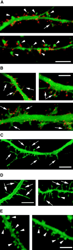 Forced expression  of syndecan-2 in young hippocampal neurons induces  the morphological maturation of dendritic spines. Hippocampal neurons at 1 DIV  were cotransfected in 1:1 ratio with full-length syndecan-2 plus GFP (A) or with  the syndecan-2 ΔEFYA deletion mutant plus GFP (B).  Cells were analyzed 7 d after  transfection by confocal microscopy after immunostaining with anti–syndecan-2 antibodies which recognize the  extracellular domain of syndecan-2 (red). Those neurons  that showed only GFP fluorescence, but were negative  for syndecan-2, were considered as control transfected  neurons (C). Note that the  protrusions on neurons transfected with full-length syndecan-2 (A) are short and  exhibit a mature spine morphology. Transfected syndecan-2 is expressed on these  spines. Arrowheads indicate  stubby and mushroom-shaped  spines. In contrast, syndecan-2 ΔEFYA-transfected  neurons (B) do not have spines with mature morphology. Most of the protrusions are long and filopodia-like (arrows), as seen in control transfected neurons (C). Note: although there is no effect on the morphology of protrusions,  syndecan-2 ΔEFYA is targeted to these protrusions and forms clusters (B), as  seen in neurons transfected with full-length syndecan-2 (A). (D) Nontransfected cultured hippocampal neurons at 1 wk in vitro, the majority of dendritic  protrusions are long, thin filopodia, as seen in transfected control (C). (E)  4-wk-old nontransfected cultured hippocampal neurons. By 4 wk in culture  dendritic protrusions are transformed into short spines with stubby or mushroom-like shapes. Note: in D and E dendritic protrusions are visualized by  DiO fluorescence. Bars, 5 μm. (F–J) Statistical analysis of dendritic protrusion  length in transfected hippocampal neurons. Protrusions in neurons transfected  with full-length syndecan-2 (F) are shorter and exhibit more homogeneous distribution than control transfected neurons. Control transfected neurons (H)  exhibit high variability in protrusion length, and the majority of the protrusions are longer than 1 μm, as also shown for untransfected control (I) at  the same stage in culture (8 DIV). Neurons transfected with the syndecan-2  ΔEFYA deletion mutant (G) show high variability in protrusion length similar  to that of control transfected neurons. There is no significant difference of  dendritic protrusion length of control and syndecan-2 ΔEFYA transfected  neurons. Decrease in dendritic protrusion length in syndecan-2 transfected  neurons at 1 wk in vitro was similar to changes in dendritic protrusion length in  4-wk-nontransfected cultures (J).