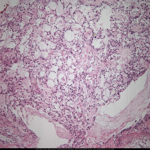 Histologic specimen demonstrates epithelial cells lining a myxoid/fibrous core.