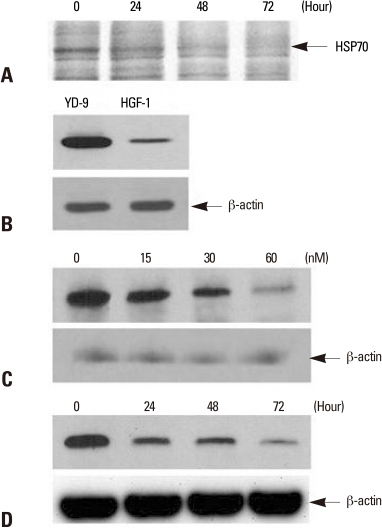Detection of HSP70 and the effect of PEA on HSP70 expression in YD-9 cells. (A) After incubation with15 nM PEA for indicated periods, identification of differentially expressed proteins using LC-MS/MS indicated HSP70. (B) Western blot for HSP70 from YD-9 and HGF-1 cells was performed. The expression level of HSP70 in YD-9 cells was higher than HGF-1 cells. (C) After incubation with indicated doses of PEA for 24 hours, Western blot analysis showed a decrease of HSP70 expression. (D) After incubation with 15 nM of PEA for indicated time periods, Western blot analysis showed a time-dependent continual decrease in HSP70 expression.