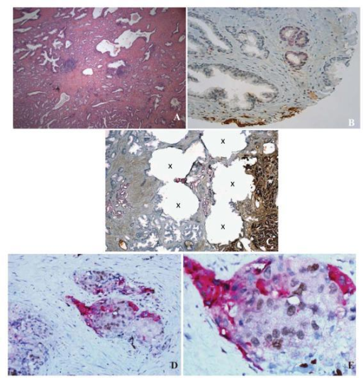 Concomitant expression of ERG and SPINK1 in prostate cancerHematoxylin and Eosin staining of a prostate cancer tissue (A) with expression of both ERG (red) and SPINK1 (brown) in two different adjacent foci (B). Image from the resection of the same case shown in B demonstrating ERG and SPINK1 positivity in adjacent foci with punch holes (X) for tissue microarray biopsies (C). Concomitant expression of ERG (brown) and SPINK1 (red) in the same tumor foci (D&E).