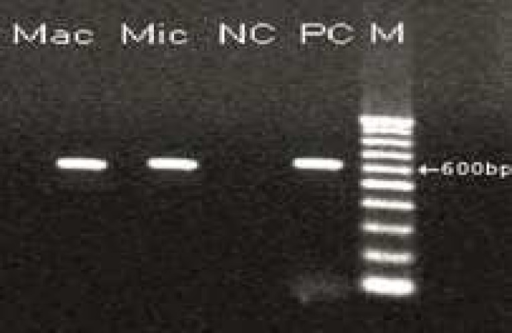 PCR-product of microscopic and macroscopic cyst.