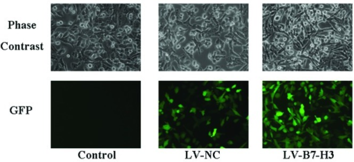 Efficiency of infection as detected by GFP expression using fluorescence microscopy.Patu8988 cells were infected with lentivirus LV-B7-H3 and lentivirus LV-NC,respectively. Phase contrast and GFP expression were assessed under a fluorescencemicroscope. (Magnification, ×200).