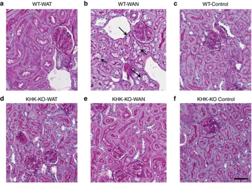 Renal histology. Proximal tubular injury (loss of brush border with tubular dilation; arrows) is observed in wild-type mice that were dehydrated without water (WAN) (b). Comparing with the groups WT-WAT (a); WT-Control (c); KHK-KO-WAT (d); KHK-KO-WAN (e); and KHK-KO Control (f). Scale bar=50 μm. KHK-KO, fructokinase-knockout; WAN, water at night; WAT, water all time; WT, wild type.