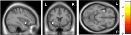 Impact of the rs28365859 genotype on gray matter volume of left insula in schizophrenia.Age, sex, illness duration, and medication dose were used as covariates. The protective C allele carriers had a significantly larger left insula than the G homozygotes. Anatomical localizations are displayed on the normal template MR images in three directions. The color bar shows t values corresponding to the color in the figure.