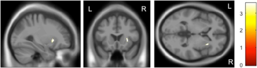 Impact of the rs28365859 genotype on gray matter volume of the right putamen in healthy controls.The G allele homozygotes had a significantly larger right putamen than the C allele carriers. Anatomical localizations are displayed on the normal template MR images in three directions. The color bar shows t values corresponding to the color in the figure.