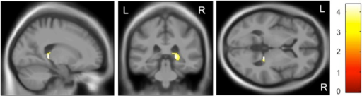 Impact of the rs28365859 genotype on gray matter volume of the right hippocampus in schizophrenia.Age, sex, illness duration, and medication dose were used as covariates. The protective C allele carriers had a significantly larger right hippocampus than the G allele homozygotes. Anatomical localizations are displayed on the normal template MR images in three directions. The color bar shows t values corresponding to the color in the figure.