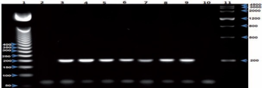 Second round of nested PCR to detect Plasmodium falciparum, indicating positivity at the expected size (205 bp). Lane 1- 50-bp DNA Step Ladder (Promega), lane 2 - negative control, lane 3 - positive control, lanes 4-9 - samples, lane 10 - control reagent; lane 11 - Gel Pilot Wide Range Ladder (100) (Qiagen).