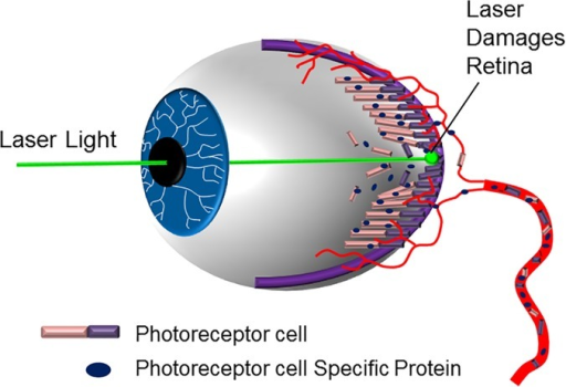 Diagram Of Retinal Injury From Laser Exposure The La Open I